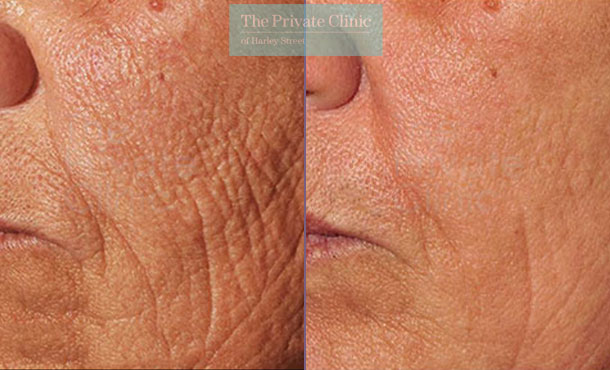 Laser resurfacing pearl smoker lines before after photo results 064TPC