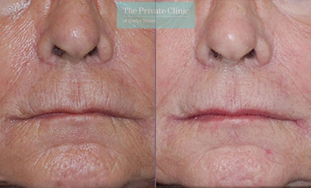 Laser resurfacing pearl smoker lines wrinkles before after photo results 054TPC