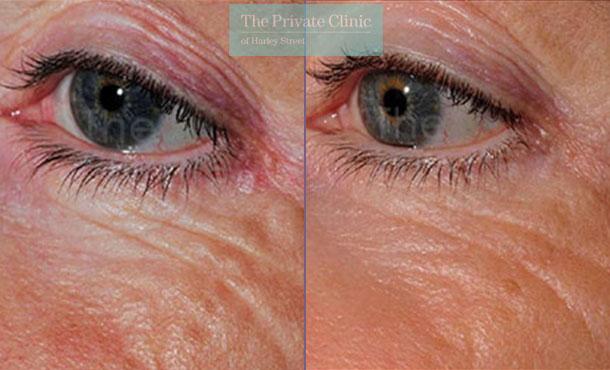 Laser resurfacing pearl under eye wrinkles before after results 062TPC