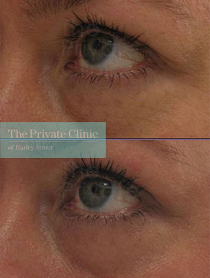 Laser resurfacing pearl under eyebags before after photo results 058TPC