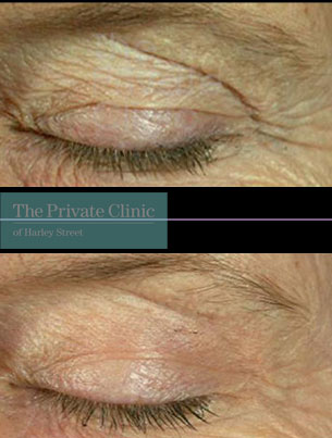 Laser resurfacing pearl upper eyelids before after photo results 052TPC