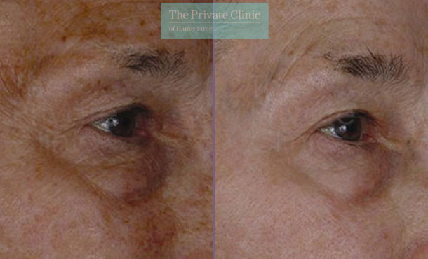 Laser resurfacing pearl upper lower eyelids eyebag before after photo results 042TPC