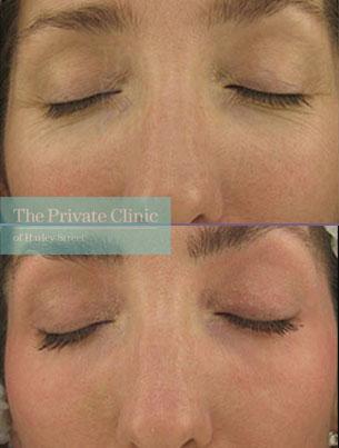 Laser resurfacing under eye wrinkles before after photo results 048TPC