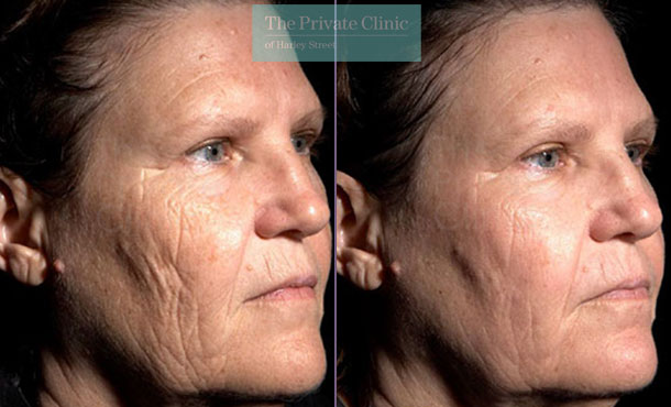Laser resurfacing women facial lines wrinkles before after photo results 047TPC