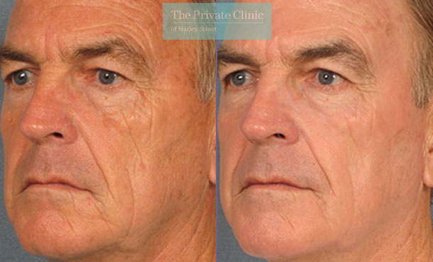 Laser skin resurfacing male facial wrinbkles before after photos results 057TPC