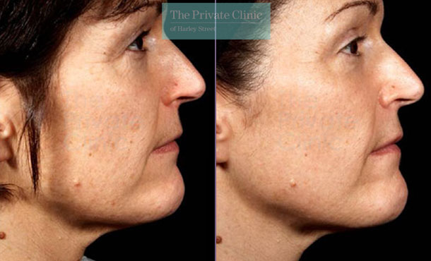 Laser skin resurfacing pearl before after photo results 036TPC