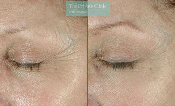 Obagi Elastiderm eye cream serum before after photos results 070TPC