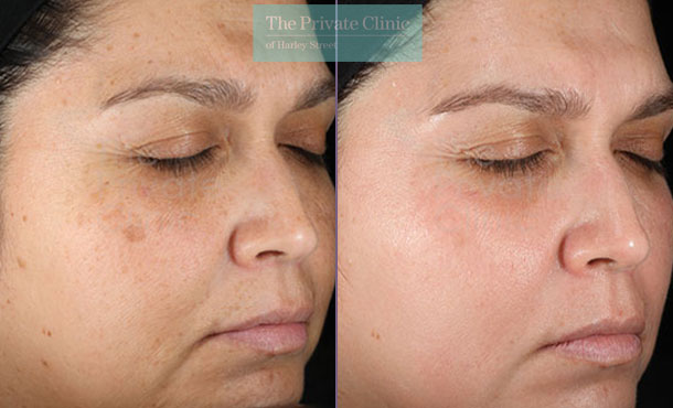 Obagi NuDerm skinacre results uk before after photo 082TPC