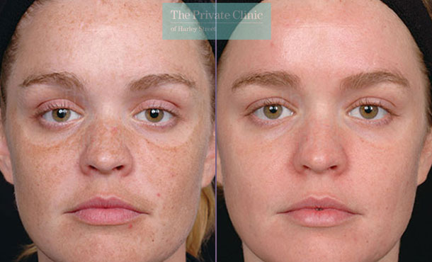 Obagi NuDerm skincare before after photo uk results 075TPC