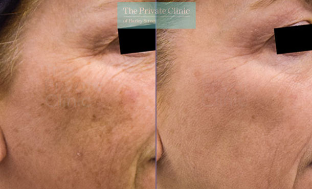 Obagi NuDerm skincare uk before after photo results 073TPC