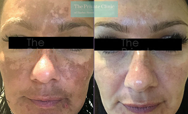 Obagi NuDerm system before after photo results 069TPC