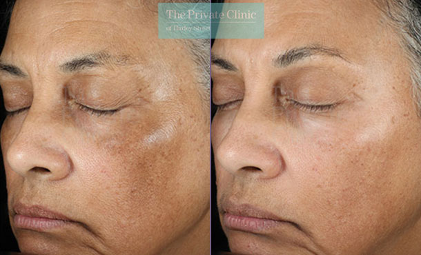 Obagi NuDerm system before after photo results london081TPC