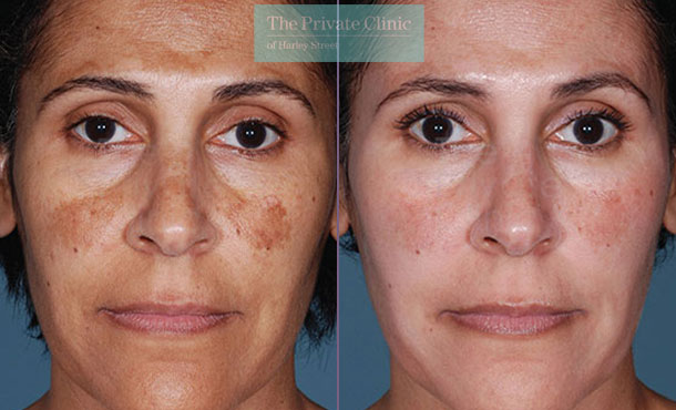 Obagi NuDerm system london before after photo results 074TPC