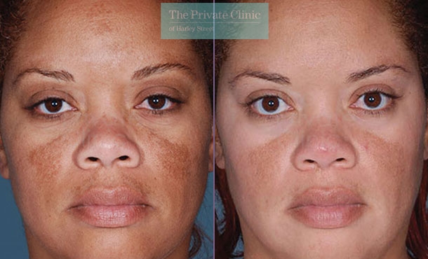 Obagi NuDerm system results before after photos 076TPC