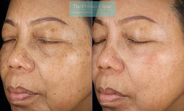 Obagi NuDerm system skin rejuvenation before after photo results 080TPC