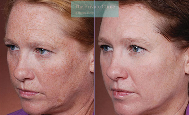 Obagi NuDerm system transformation before after photo results 079TPC