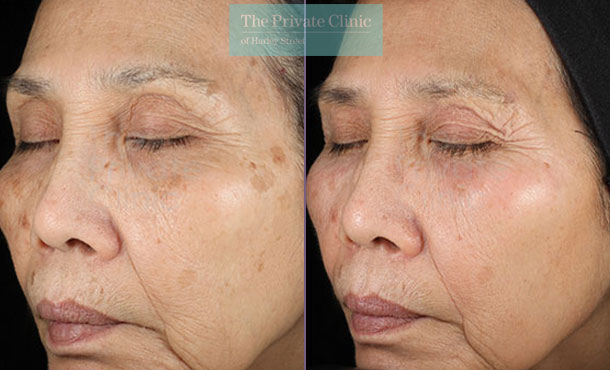 Obagi NuDerm system uk results before after 078TPC