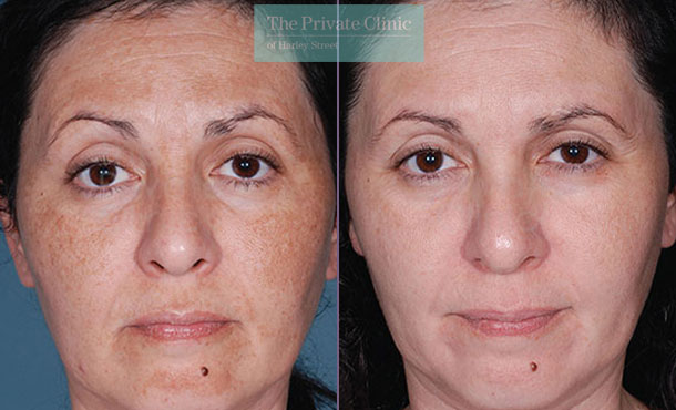 Obagi NuDerm update before after photo results 077TPC