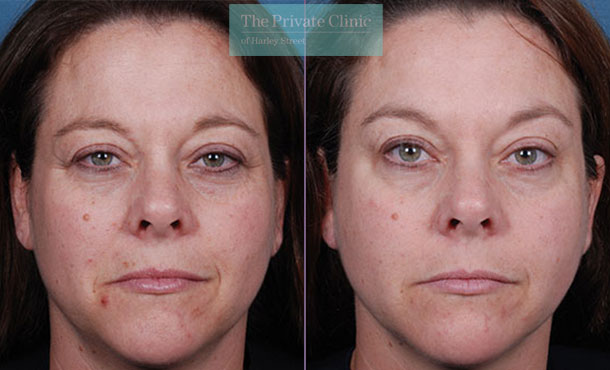 Obagi Radiance peel before after photo results 068TPC