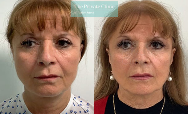 One stitch lift temporal facelift london before after photos results front davood fallahdar 016DF