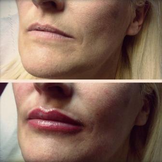 Semi Permenant make up at The Private Clinic Birmingham