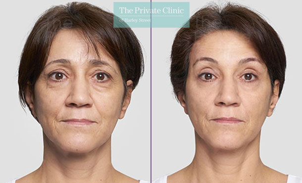 Threadlift mid face lift eyebrows surgery before after photo results 083TPC