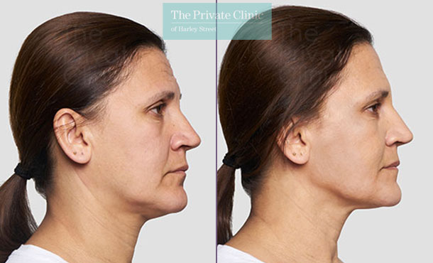 Threadlift mid face lift jawline female before after photo uk results 084TPC