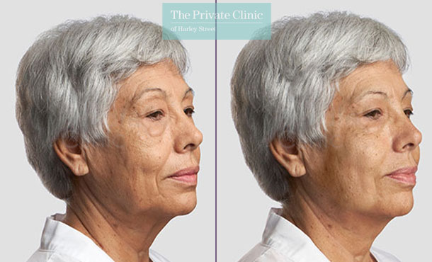 Threadlift mid face lift jawline women before after photo london results 087TPC