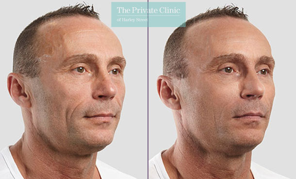 Threadlift mid face lift men before after photo results 085TPC