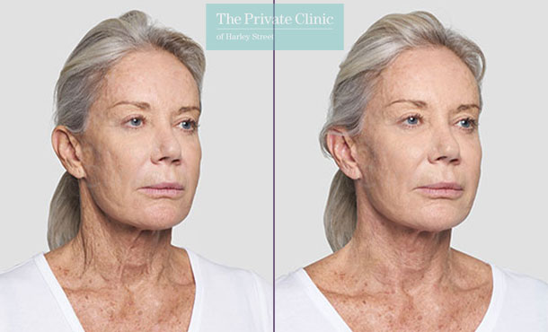 Threadlift neck lift uk before after photo results 088TPC
