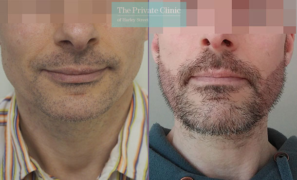 beard hair transplant FUE before after photo results mr michael mouzakis front 022MM