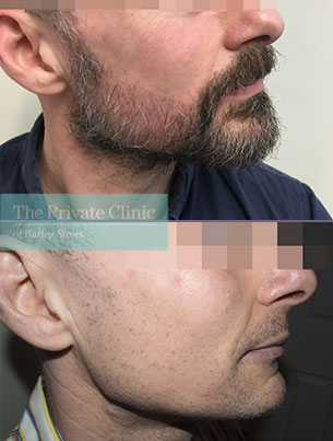 beard hair transplant uk before after photo results mr michael mouzakis side 022MM