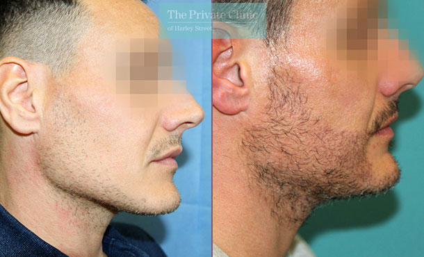 beard hair transplantation before after results dr raghu reddy 132RR