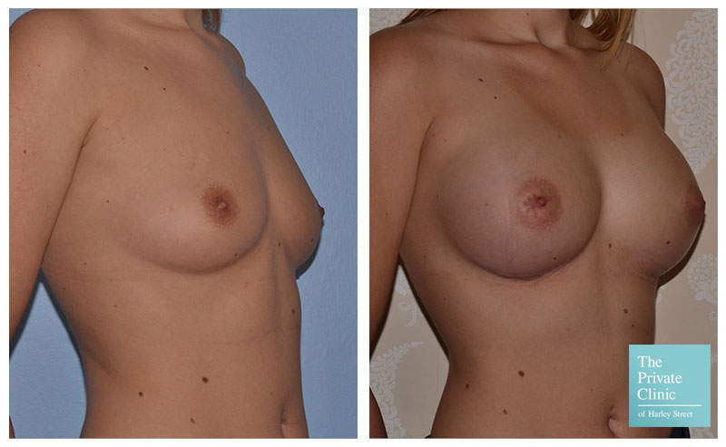 breast augmentation enlargement implants before and after photos 001