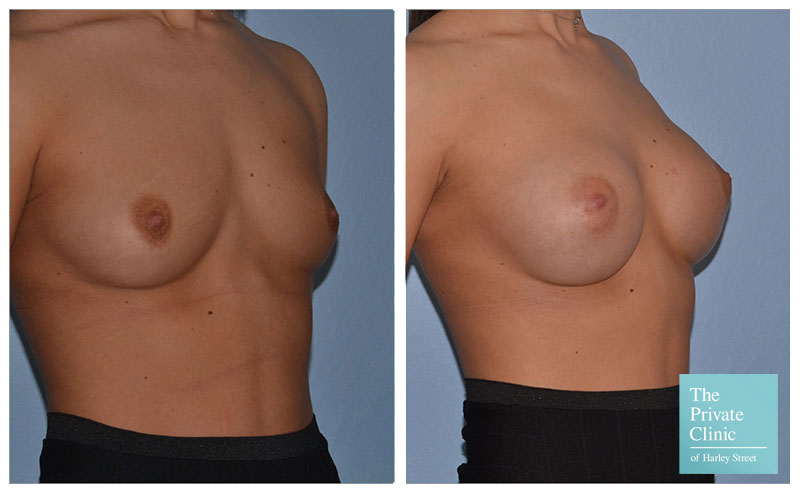 breast augmentation enlargement implants before and after photos 002