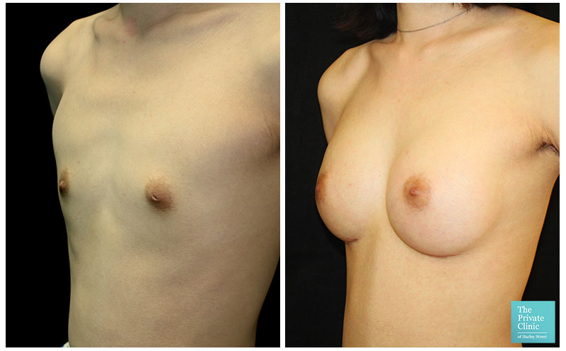 breast augmentation enlargement implants before and after photos 003