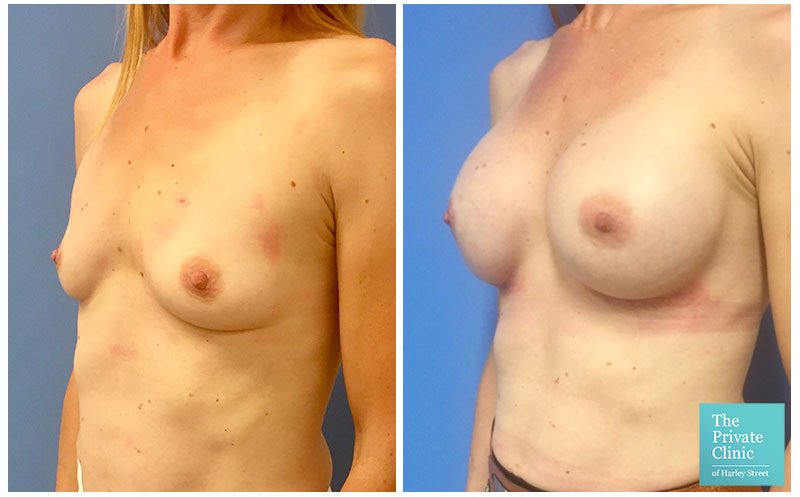 breast augmentation enlargement implants before and after photos 004