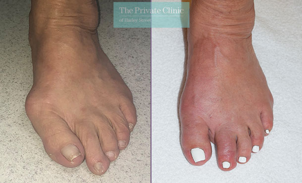 bunion minimally invasive keyhole surgery before after photos dr andrea bianchi 002AB