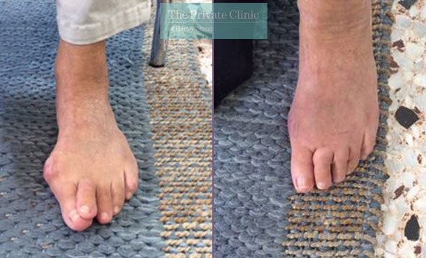 bunion removal london minimally invasive surgery before after results photos dr andrea bianchi 008AB