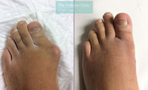 bunion removal reduction bunionectomy before after photos uk dr andrea bianchi 005AB