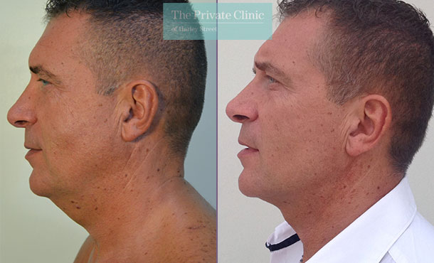 chin neck liposuction fat removal men micro lipo before after photos results mr roberto uccellini side1 007RU