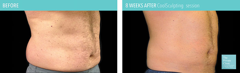 coolsculpting fat freezing results before after photos flanks and tummy manchester 2