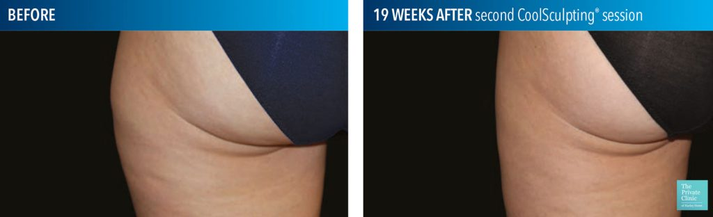 coolsculpting fat freezing results before after photos outer thigh bristol 1024x312 1