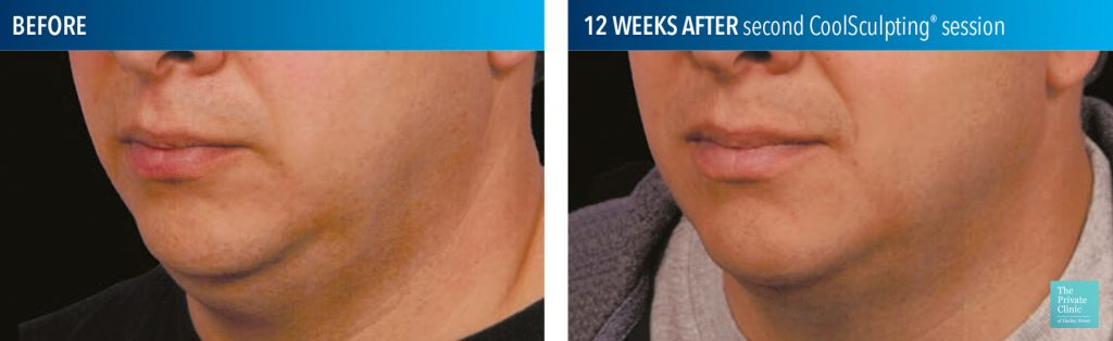coolsculpting fat freezing results before after photos submental chin 013 1024x314 1