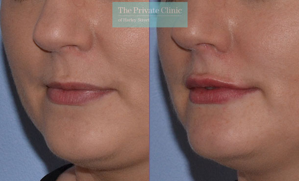 dermal fillers plump lips before after results photos london mel recchia 005MR