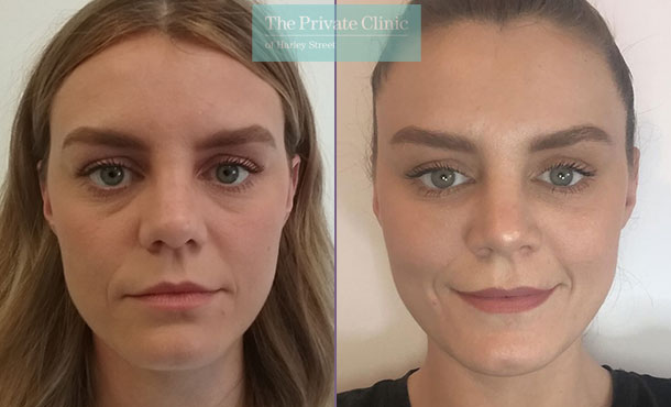 dermal fillers tear trough under eye filler before after results photos dawn lisa 001DL