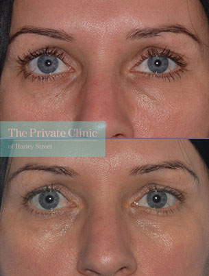dermal fillers tear trough under eye filler before after results photos mel recchia 001MR