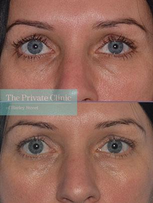 dermal fillers tear trough under eye filler before after results photos mel recchia 001MR