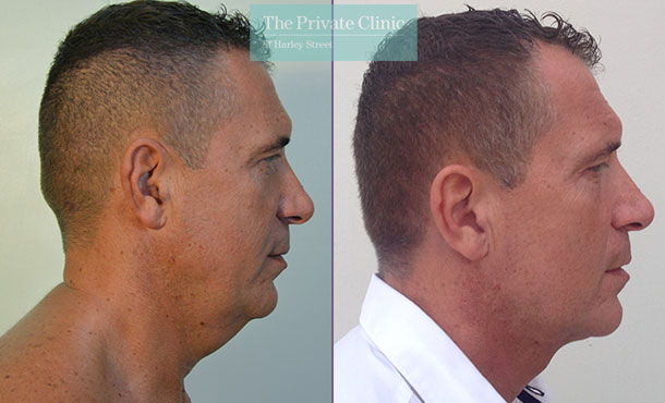 double chin reduction liposuction micro lipo fat removal before after photos results mr roberto uccellini side2 007RU