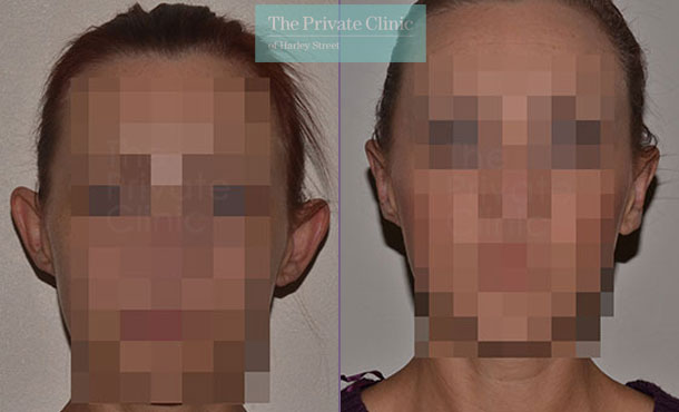 ear correction surgery otoplasty before after photo london results front 015TPC